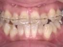 上顎にブラケットとワイヤーが入った状態の矯正口腔内写真